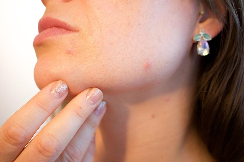 Plus jamais de cicatrices à cause de l'acné!